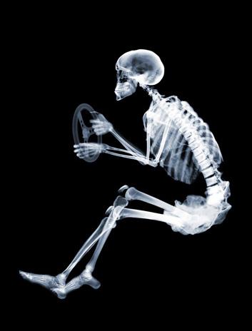 Nick Veasey - Skeleton driver, Ed. I/V