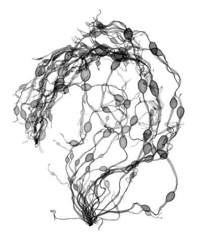 Nick Veasey - Seaweed Swirl
